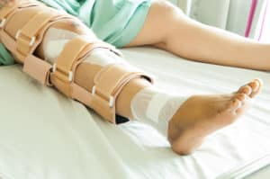 A woman with a surgically repaired leg wearing a leg brace.